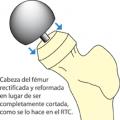 Protecis metal de cadera
