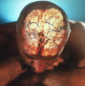 Pedido Tratamiento de derrame cerebral