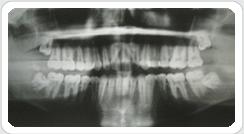 Pedido Diagnóstico Radiológico y Dental