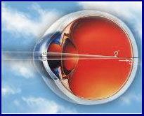 Pedido Cirugía refractiva