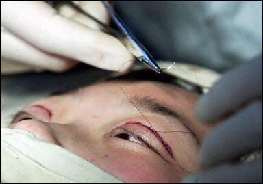 Pedido Cirugia estetica