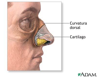 Pedido Cirugía estética de la nariz