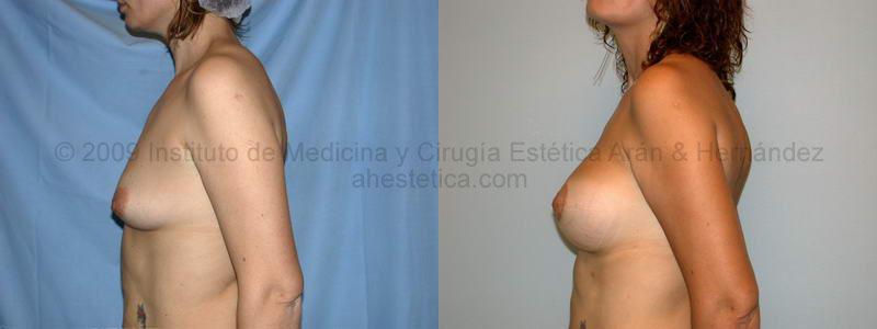 Pedido Cirugia de mama