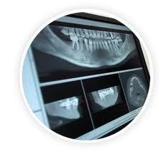 Pedido Radiología dental