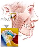Pedido Articulación Témporo-mandibular