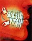 Pedido Alteraciones en la Erupción y Posición Dentarias