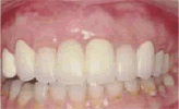 Pedido Prostodoncia