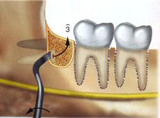 Pedido Cirugía Bucal