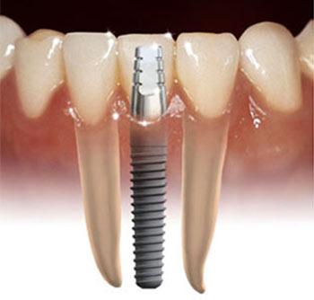 Pedido Implantologia oral