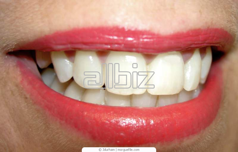 Pedido Blanqueamiento dental