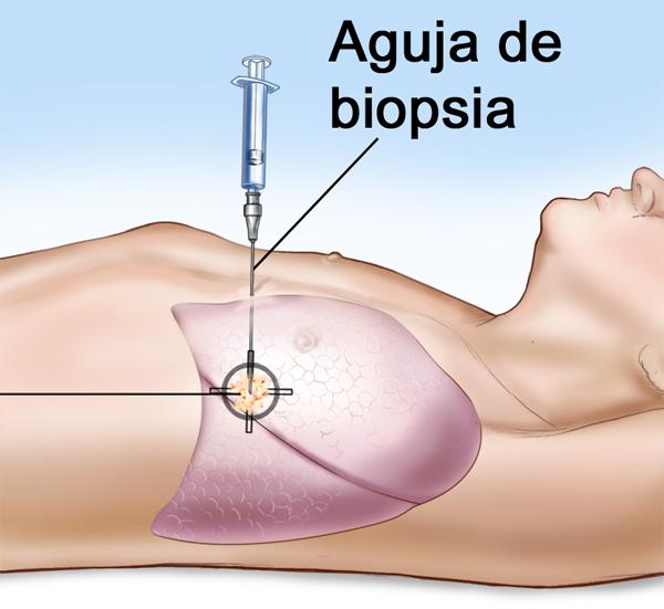Pedido Biopsias multiples