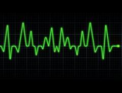 Laboratorio clínico electrocardiogramas
