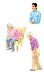 Tratmiento de enfermedad de Parkinson