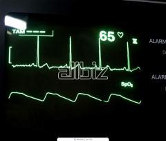 Electrocardiogrammas