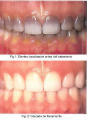Blanqueamiento dental con laser