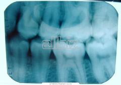 Servicios endodoncias