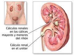 Tratamiento de cálculos renales