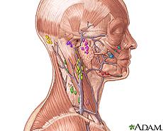 Tratamiento de enfermedades linfaticas