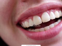 Profilaxis dental
