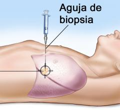 Biopsias multiples