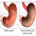 Tratamiento de enfermedadesdel higado- gastritis
